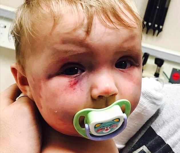 Pobiła 8 Miesięczne Dziecko A Sąd Przymknął Na To Oko